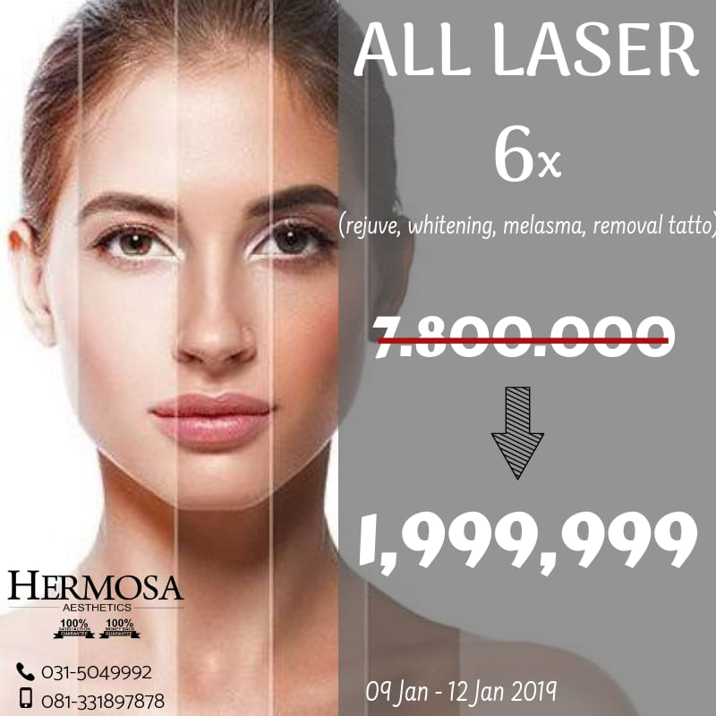 All Laser Treatment 6x Hanya Rp 1.999.99